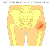 Pain in the hip joint_intertrochanteric femur fracture with disl Stock Photos