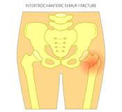 Pain in the hip joint_intertrochanteric femur fracture Stock Images