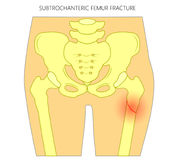 Pain in the hip joint_subtrochanteric femur fracture Royalty Free Stock Images