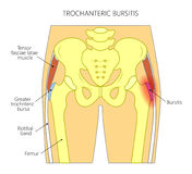 Pain in the hip joint_trochanteric bursitis. Vector illustration of a human pelvis and hip with pain in the hip joint and trochanteric bursitis. Front view. For Stock Images