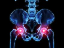 Pain in the hips Royalty Free Stock Photography