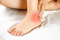 The pain in his ankle. Bad leg. The focus of pain is marked in r royalty free stock photo