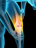 Pain in the knee. Medically accurate 3d illustration of pain in the knee Stock Images