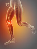 pain in the knee Royalty Free Stock Photos