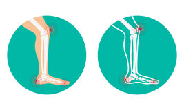 Pain in legs. knee pain, heel pain. Vector illustration Stock Images