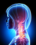 Pain in neck. Spine anatomy Stock Photos