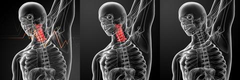 Pain neck Stock Photos