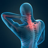 Pain in the neck Stock Photography