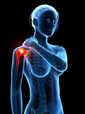 Pain in the shoulder joint Stock Images