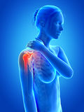 Pain in the shoulder joint Stock Photos