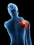 Pain in the shoulder joint. A woman having acute pain in the shoulder joint Royalty Free Stock Photos