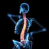 Pain of spinal cord. 3d rendered medical x-ray illustration of transparent  full body x-ray back pain Stock Image