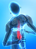 Pain in spine concept Stock Photography