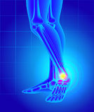 Pain and swelling on the inside of the ankle. Pain of a foot. An Stock Photography
