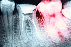 Pain Of Tooth Decay On X-Ray. Pain Of Tooth Decay On Teeth X-Ray Stock Image