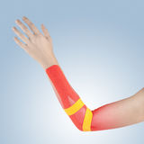 Pain in woman elbow. Stock Photo