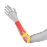 Pain in woman wrist. Stock Image