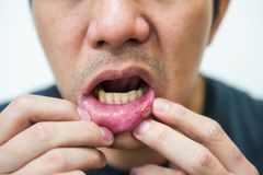 Pained aphtha ulcer at mouth Stock Photo