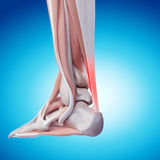 Painful achilles tendon. Medically accurate illustration - painful achilles tendon Stock Image