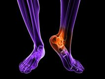 Painful ankle illustration Royalty Free Stock Photos