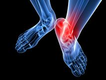 Painful ankle illustration Stock Image