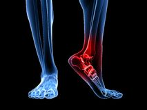 Painful ankle illustration Royalty Free Stock Photo