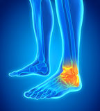 Painful Ankle Illustration Royalty Free Stock Images