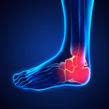 Painful Ankle Illustration Stock Photos
