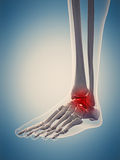 The painful ankle. Medically accurate 3d illustration of the painful ankle Stock Image