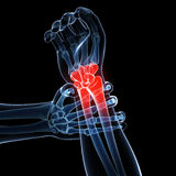 Painful arm Royalty Free Stock Images
