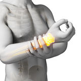 Painful arm. 3d rendered illustration - painful arm/wrist Stock Photography