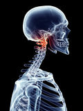 Painful atlas. Medically accurate illustration - painful atlas Stock Photo