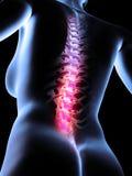 Painful back Royalty Free Stock Image