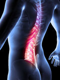 Painful back. 3d rendered anatomy illustration of painful back Stock Photo