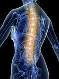 Painful back Stock Photo