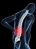 Painful back Stock Image