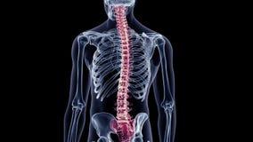 A painful back