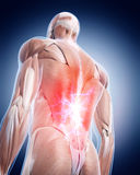 Painful back. Medical 3d illustration of a painful back Royalty Free Stock Images