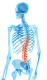 Painful back. Medically accurate illustration - painful back Stock Image