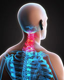 Painful Cervical Spine Royalty Free Stock Photos
