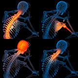 Painful. 3d render skeleton of the man with the painful Stock Photo