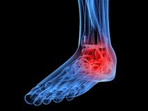 Painful foot Stock Images