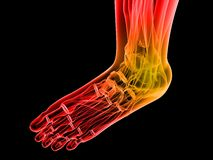 Painful foot Royalty Free Stock Images