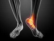 Painful foot illustration Stock Photography