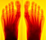 Painful foot Xray. Isolated on yellow background with red illumination royalty free stock images