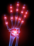 Painful hand joints. 3d rendered x-ray illustration of a skeletal human hand with painful joints Royalty Free Stock Image