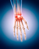 The painful hand. Medically accurate 3d illustration of the painful hand Stock Photography