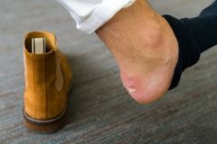 Painful Heel wound on mans feet caused by new shoes. Cracked terrible blister on human heel with new brown fashion shoes laying. Around. Wet bloody painful skin royalty free stock photos