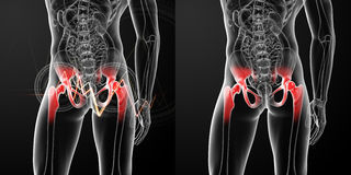 Painful hip joint Royalty Free Stock Image