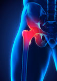 Painful Hip Joint. Illustration. 3D render Stock Photo